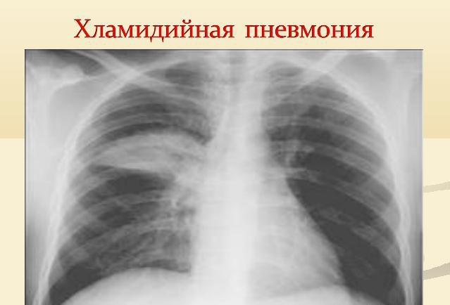 как лечить хламидии пневмонии у ребенка
